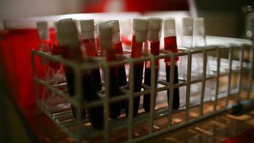 Badanie krwi, zdjęcie ilustracyjne.