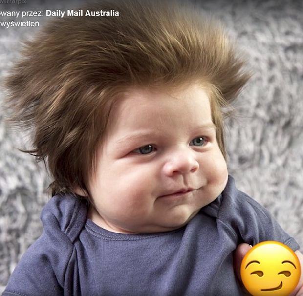 """""""Spójrzcie, jakie to dziecko ma włosy!"""". Czupryna niemowlęcia tak bujna, że przypomina perukę"""
