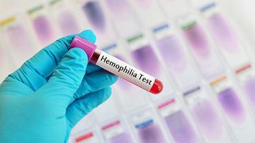 Hemofilia to choroba spowodowana nieprawidłową krzepliwością krwi.