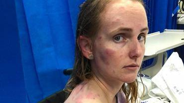 Kobieta ochroniła swoje dziecko przed gradem, jej ciało jest w strasznym stanie