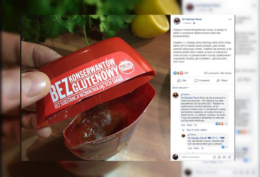 Dietetyk znalazł pleśń w keczupie znanej marki: To niedobrze, że taka firma ulega presji konsumentów