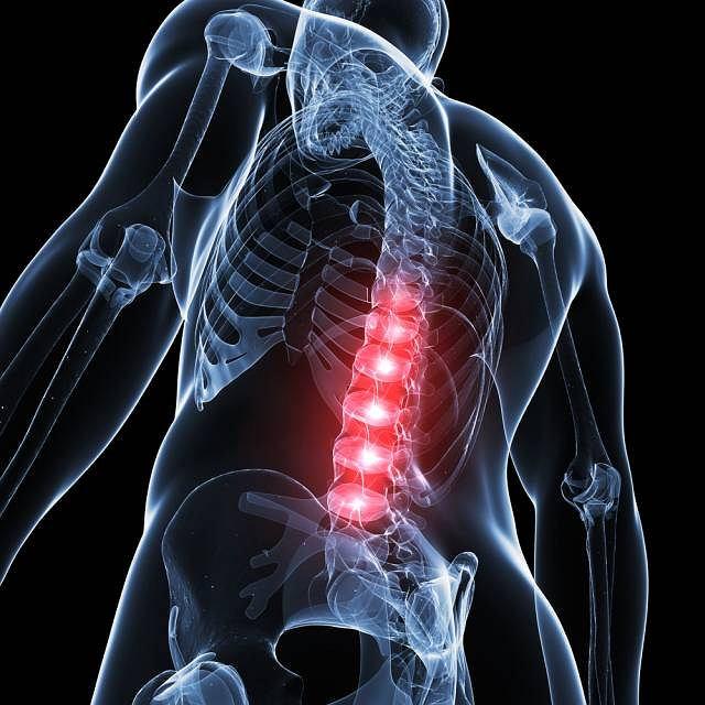 Choroba Scheuermanna zaliczana do jałowych martwic kości charakteryzuje się zaburzonym kostnieniem trzonów kręgowych