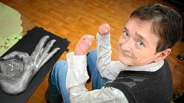 Przemysław Sobieszczuk, założyciel Stowarzyszenia Debra Polska Kruchy Dotyk, które wspiera chorych na EB