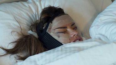 Katie Price po operacji