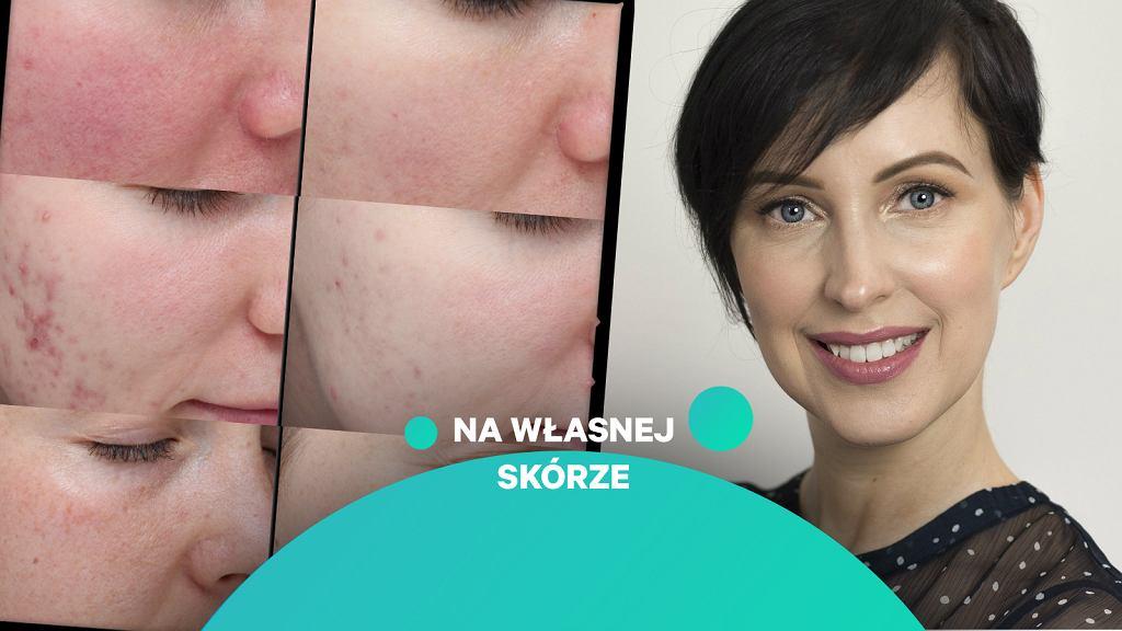 Agnieszka Zielińska i efekty jej współpracy z klientkami
