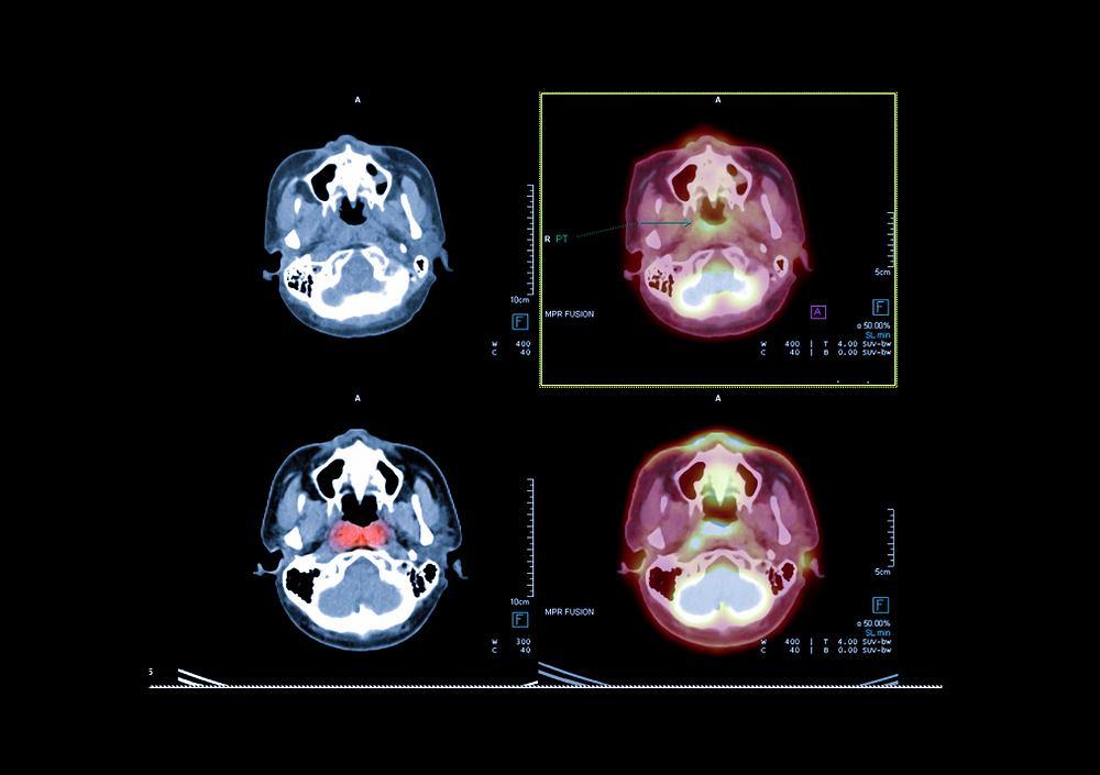 Włókniak młodzieńczy nosogardła to nowotwór łagodny