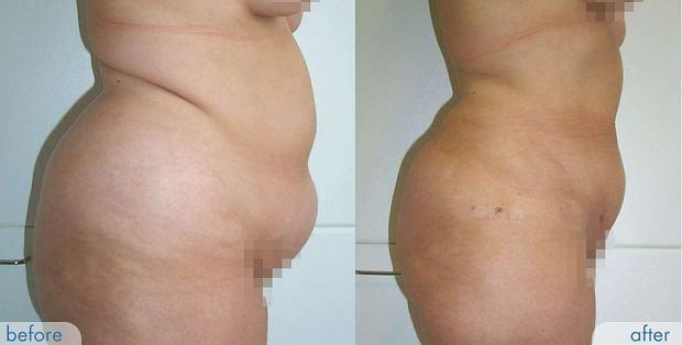 Brzuch przed i po zabiegu. Najnowocześniejsza liposukcja wodna, wykonana sprzętem Body Jett EVO