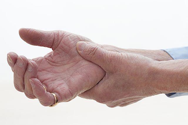 Guzki Heberdena, choć mogą pojawić się w dowolnym miejscu na dłoni, najczęściej obserwuje się je na palcu wskazującym lub serdecznym