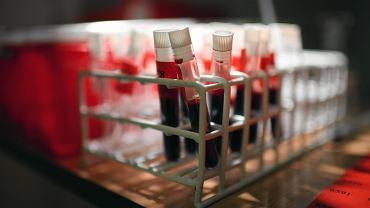 W Europie najwięcej nowych zakażeń HIV.