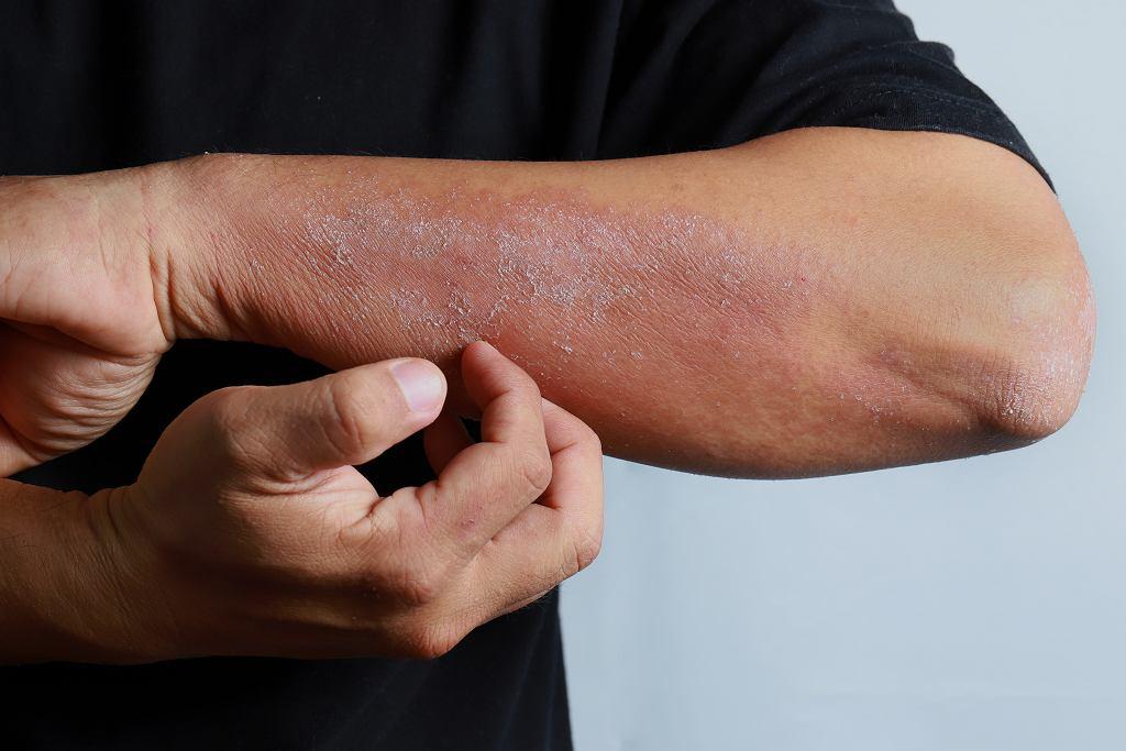 Atopowe zapalenie skóry występuje zarówno w przypadku dzieci, jak i dorosłych. Zdjęcie ilustracyjne