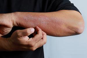 Atopowe zapalenie skóry - przyczyny i objawy. Jak wygląda leczenie AZS?