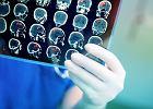 Miażdżyca mózgu: przyczyny, objawy, leczenie