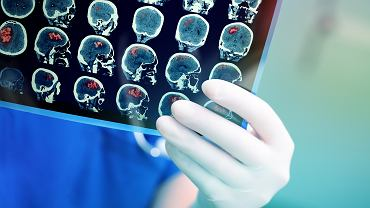 Miażdżyca mózgu