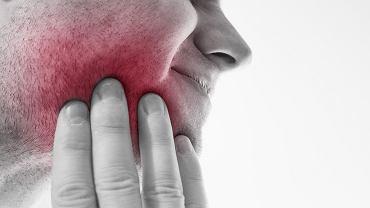 Najczęstszą przyczyną bólu zębów jest próchnica, która rozwinęła się na tyle, że odsłoniła miazgę zęba.