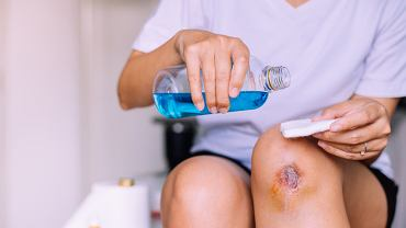 Jak wygląda zakażenie rany? Zdjęcie ilustracyjne