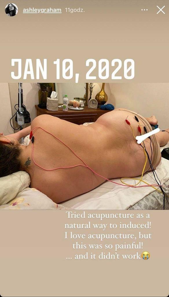 Ashley Graham próbuje akupunktury
