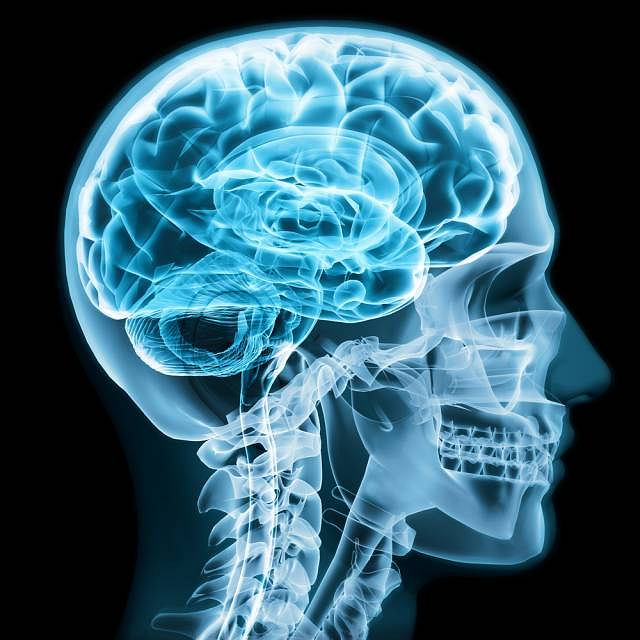 Zespół Crouzona to rzadka choroba genetyczna charakteryzująca się m.in, deformacją czaszki oraz zgryzu