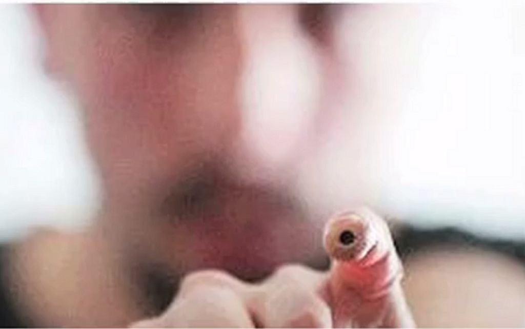 Mężczyzna z implantem kamery w palcu