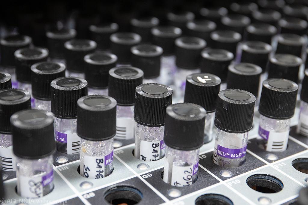 Próbki do testów na obecność koronawirusa.