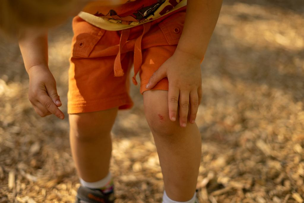 Ból nóg u dziecka może pojawić się w wyniku urazu