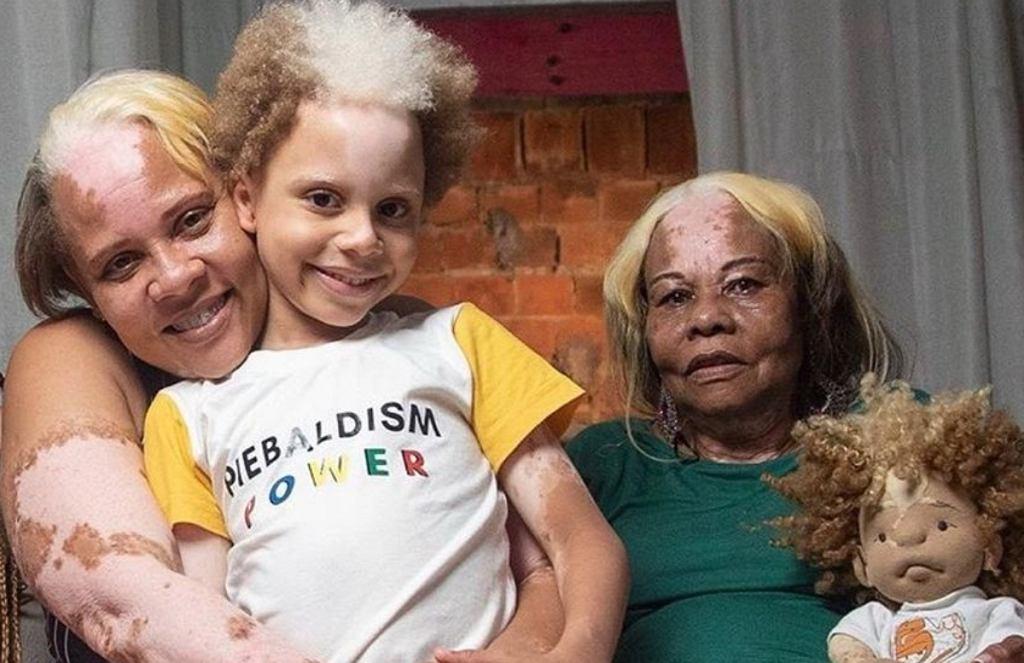 Brazylijska rodzina cierpi na rzadką chorobę