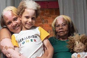 Brazylijska rodzina cierpi na rzadką chorobę. Najmłodszy syn zrobił karierę w modelingu