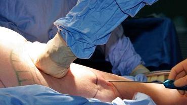 Uda, obok pośladków, bioder i brzucha, to część ciała, z której najczęściej odsysa się nadmiar tkanki tłuszczowej