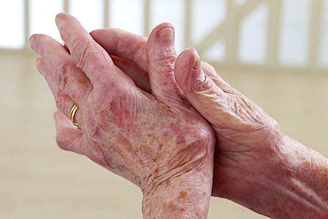 Guzki Heberdena i Boucharda najczęściej pojawiają się u osób z reumatoidalnym zapaleniem stawów