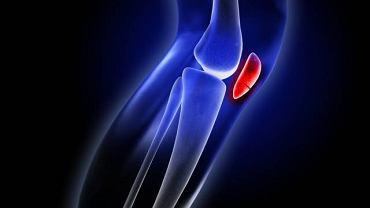 Uraz kolana to najczęściej skutek nieszczęśliwego upadu lub wypadku drogowego