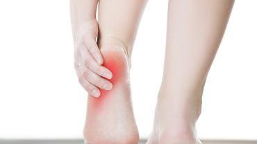 Ból pięty może świadczyć np. o powstaniu ostrogi piętowej.