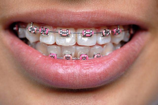 Leczenie ortodontyczne ma nie tylko poprawić wygląd, ale przede wszystkim chronić przed próchnicą i chorobami przyzębia