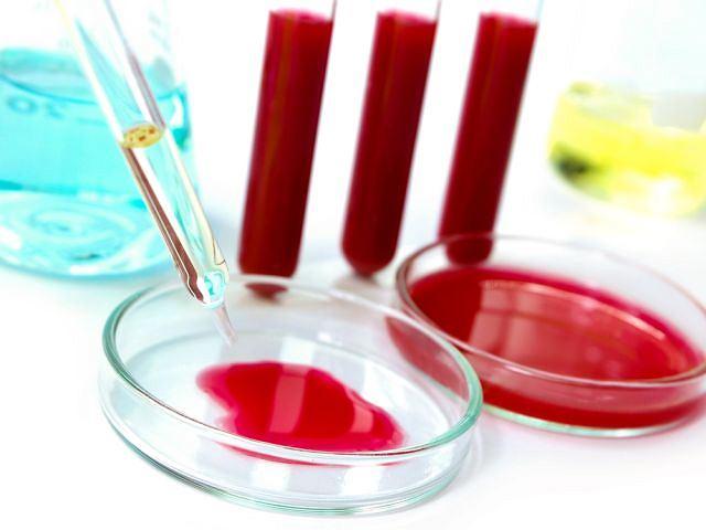Analiza krwi pozwala wykryć wiele schorzeń, szybko i bez dodatkowego uszczerbku dla zdrowia