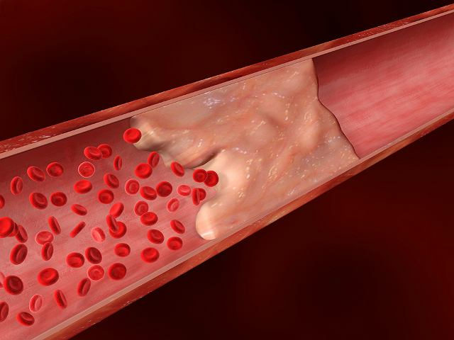 Miażdżyca to przewlekła choroba, polegająca na zmianach zwyrodnieniowo-wytwórczych w błonie tętnic, głównie w aorcie