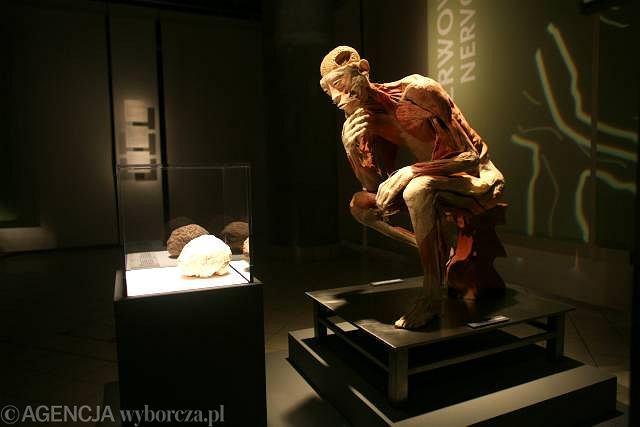 Jedna z plastynacji von Hagensa