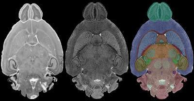Po lewej stronie obraz konwencjonalny, po środku rezonans wysokiej rozdzielczości, po prawej rezonans z zaznaczonymi różnymi barwami strukturami mózgu