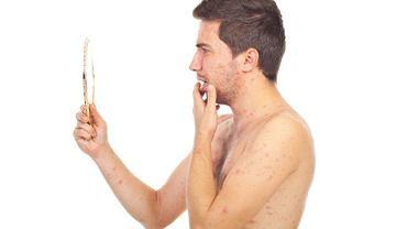 Objawy zarażenia ospą wietrzną u osoby dorosłej są podobne, jak u dzieci, ale zarazem bardziej nasilone