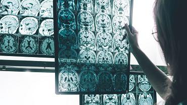 Badania naukowe nad chorobą Alzheimera