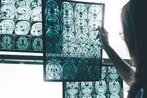 To czy zachorujemy na alzheimera nie zależy wyłącznie od genów. Dowodem historyczne badania trojaczków