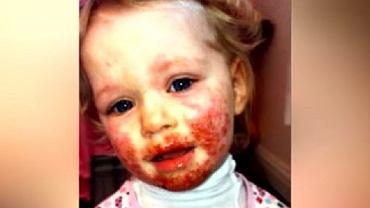 3-latka przez rok cierpiała, nikt nie wiedział na co choruje