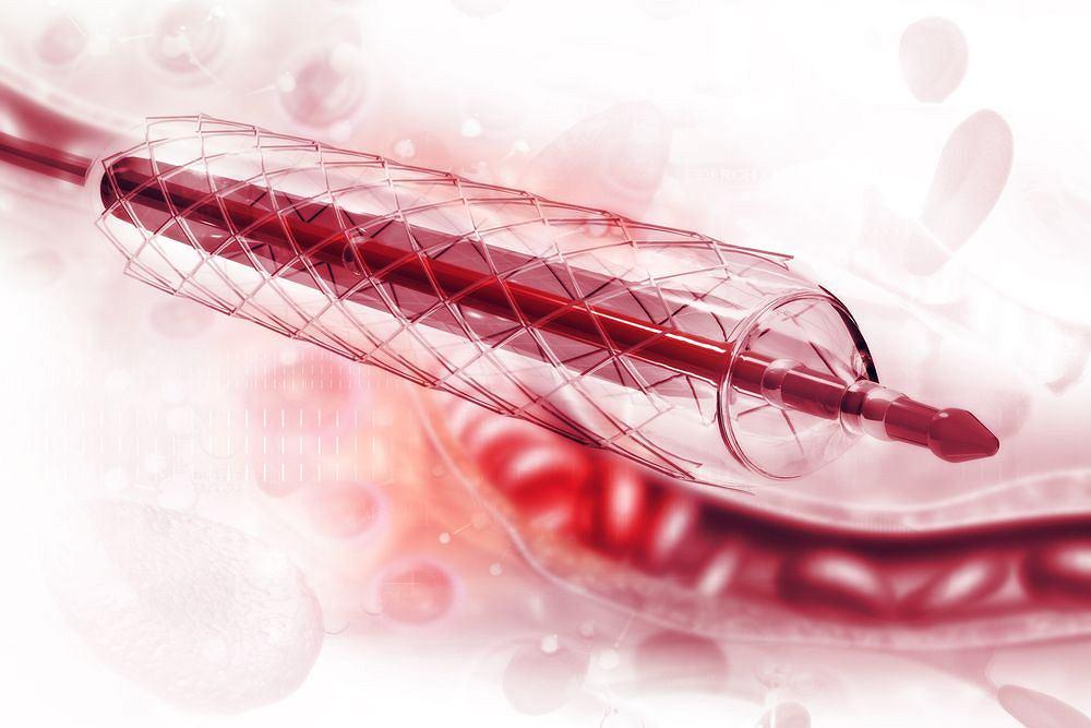 Stenty w sercu to przełomowy sposób na leczenie choroby wieńcowej.