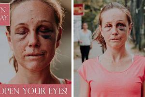 Biegaczka została zgwałcona podczas treningu. Ostrzega inne kobiety