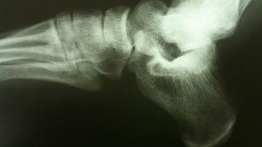 W przypadku zaawansowanej osteolizy zmiany są widoczne już w badaniu rtg. Brak zmian jednak problemu nie wyklucza. Na wczesne, zdecydowanie lepiej rokujące rozpoznanie, pozwala scyntygrafia