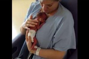 Mama bierze niespełna kilogramowego synka po raz pierwszy na ręce [WIDEO]