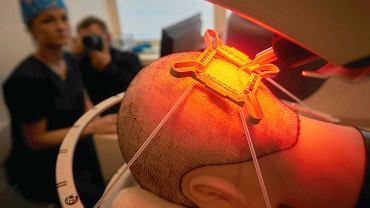 Prezentacja robota do przeszczepu włosów
