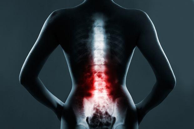 Odcinek lędźwiowy kręgosłupa - schorzenia, przyczyny bólu i leczenie