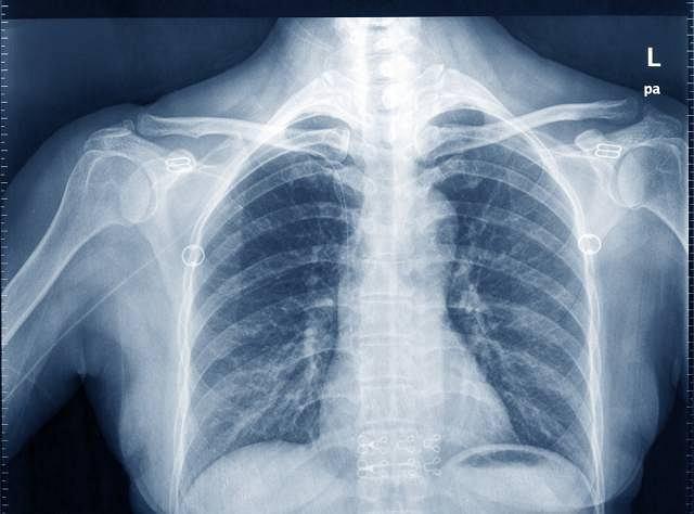 Wywołujące gruźlice prątki mogą zaatakować również kości, najczęściej w obrębie kręgosłupa