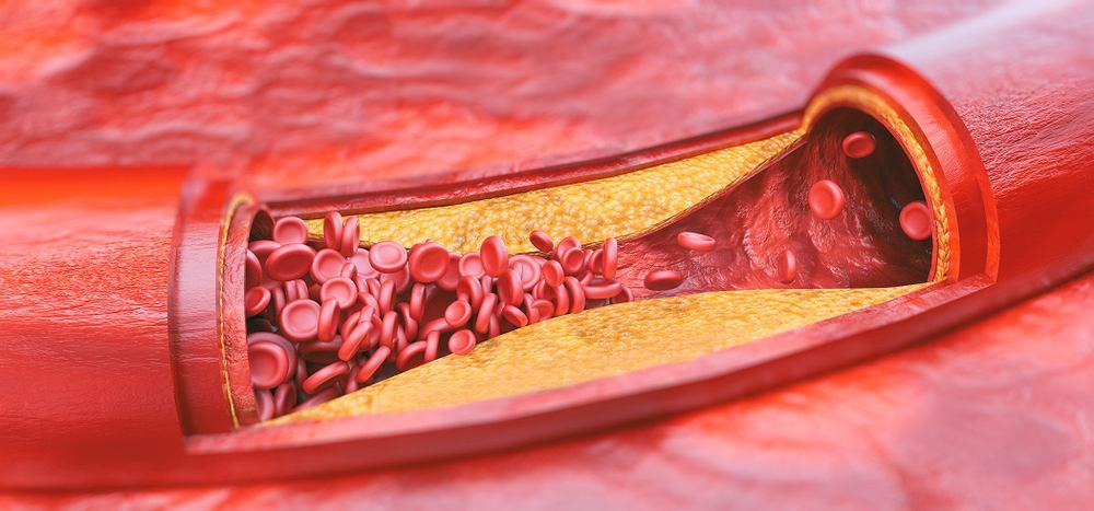 Miażdżyca to przewlekły stan zapalny, który dotyka głównie duże i średnie tętnice. Za jego rozwój odpowiedzialny jest właśnie cholesterol, który przykleja się do ścian naczynia