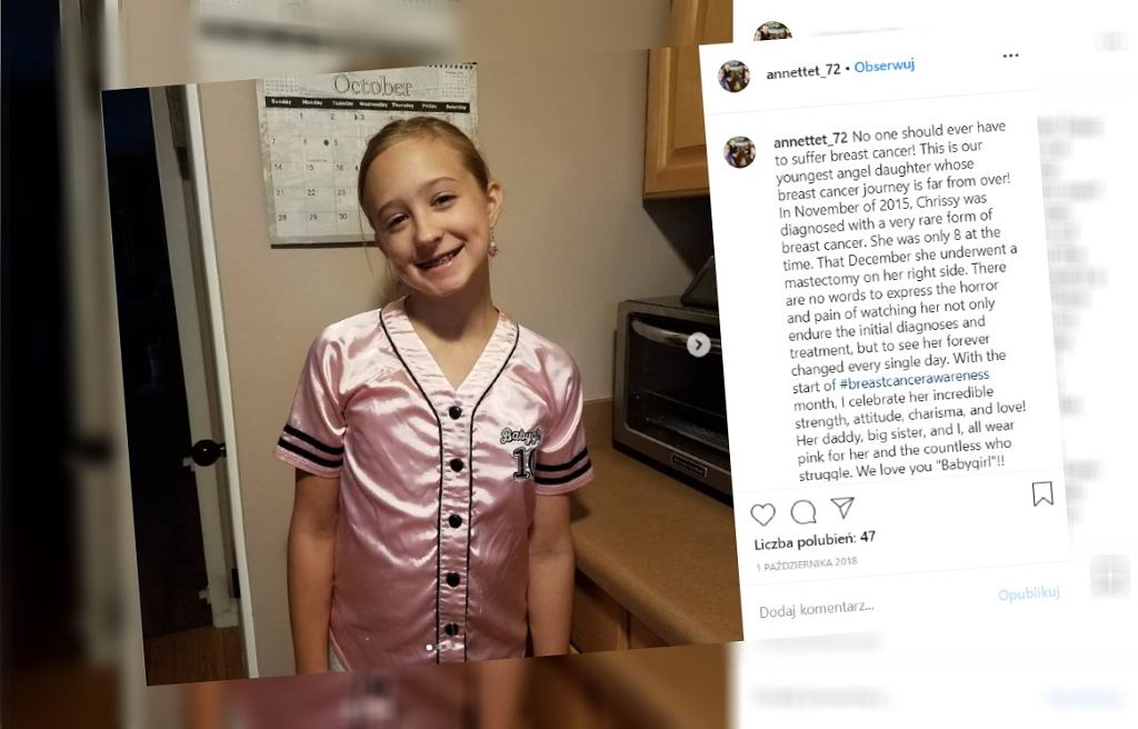 Dziewczynka zachorowała na raka piersi, gdy miała 8 lat