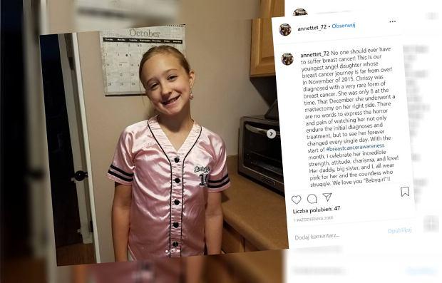"""Niezwykła historia dziewczynki, która w wieku ośmiu lat zachorowała na raka piersi. """"Wszystko jest niepewne"""""""