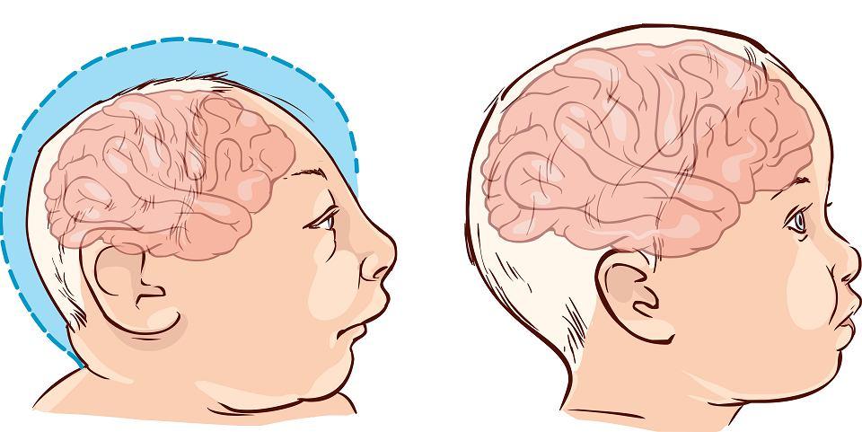 Mniejsza czaszka i mózg niemal zawsze prowadzą to niedorozwoju intelektualnego u dzieci z mikrocefalią